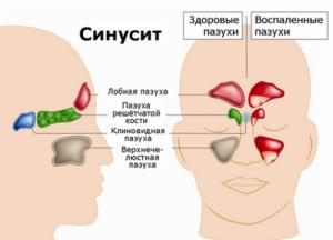 Каковы у взрослых симптомы при гайморите