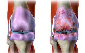 Деформирующий артроз коленного сустава: выявление причин, основы лечения