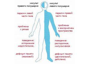 инсульт симптомы лечение