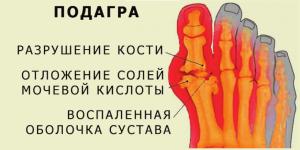 Народное лечение суставов в домашних условиях