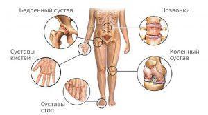 Лечение лучезапястного сустава лфк препараты профилактика