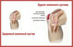 Как необходимо правильно лечить бурсит коленного сустава