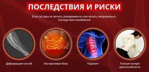 Народное лечение артроза суставов