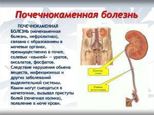 Камни в почках-нефролитиаз. Мочекаменная болезнь
