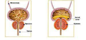 Простатит: виды, симптомы и причины заболевания