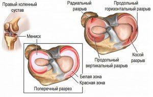 Симптомы и лечение травм коленного сустава