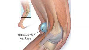 Что делать если у вас артроз колена