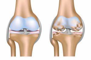 Остеоартроз суставов — лечение и симптомы