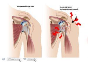 Боль в плечевом суставе: симптомы, диагностика и лечение