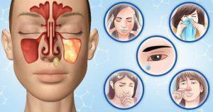 Катаральный гайморит: лечение и симптомы