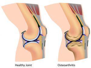 Можно ли избавиться от артрита колена