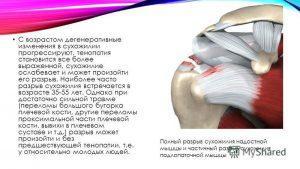 Артроз плечевого сустава — лечение