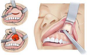 Особенности гайморита от больного зуба