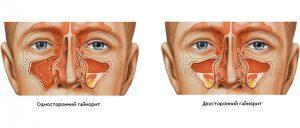гайморит симптомы и лечение у взрослых