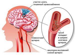 Лечение инсульта препаратами