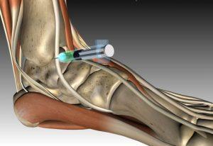 Артроз голеностопного сустава — симптомы и лечение, фото