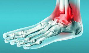 Защитить голеностопный сустав для правильного формирования стопы нужна ее плотная иглоукалывание при артрозе тазобедренного сустава отзывы