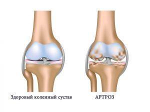 Причины и лечение деформирующего артроза коленного сустава