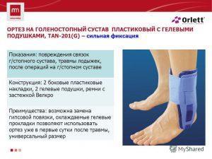 Растяжение связок голеностопного сустава - лечение дома
