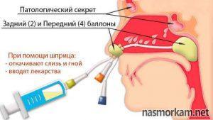 Гнойный гайморит: лечение без прокола, лекарственная терапия