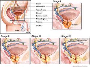 Какие виды операций проводятся при заболеваниях простаты