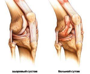 Лечение артрита коленного сустава – лекарства