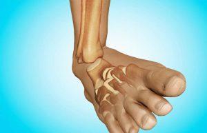 Голеностоп: симптомы заболевания голеностопного сустава, особенности лечения, фото