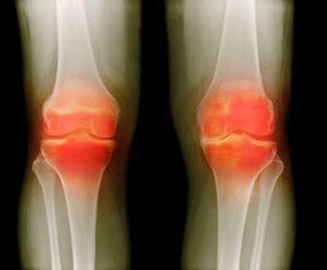 Деформирующий артроз симптомы и лечение