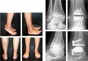 Артроз голеностопного сустава: симптомы, лечение и профилактика