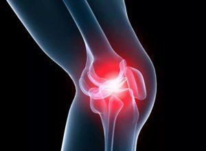 Деформирующий артроз коленного сустава - десять методов лечения!
