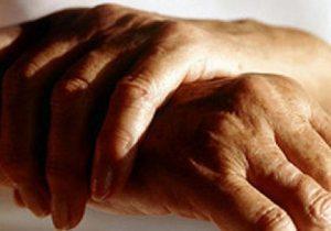 Лечение артрита пальцев рук в домашних условиях: методы