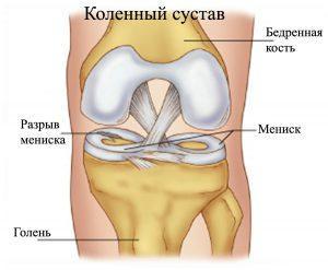 Травмы коленного сустава: симптомы и лечение
