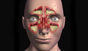 Особенности диагностики и лечения двухстороннего гайморита