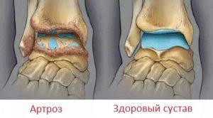 Обзор болезни артроз голеностопного сустава: причины, симптомы и лечение