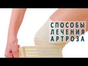 Артроз: методы лечения
