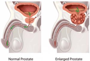 обострение простатита