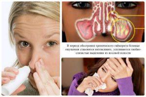 Хронический гайморит: симптомы и лечение