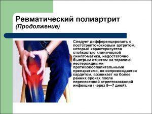 Заболевания суставов, симптомы и лечение заболеваний суставов