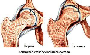 Артроз суставов: что это такое, причины возникновения, симптомы и признаки, лечение
