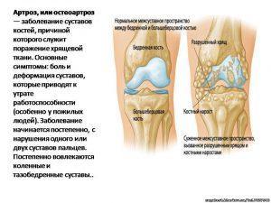 Остеоартроз суставов. Лечение остеоартроза суставов народными средствами