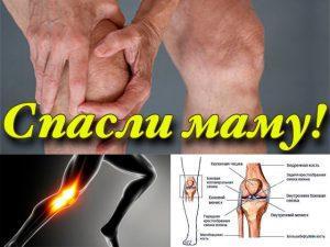 Болезни суставов. Лечение болезней суставов народными средствами