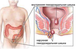 Симптомы при хроническом простатите. От внутренней боли до внешних проявлений
