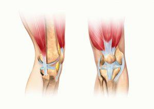 лечение связок коленного сустава