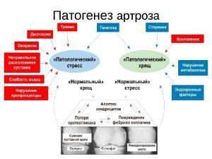 Характерные симптомы и лечение разных видов остеоартроза