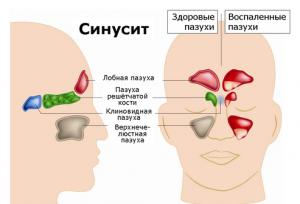 Хронический гайморит – симптомы, причины и лечение