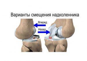 вывихи суставов лечение