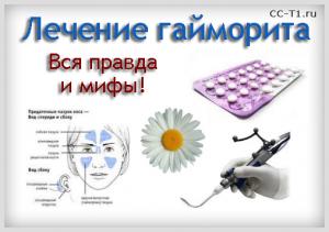 Гайморит: симптомы и эффективное лечение народными средствами