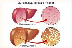 Лечение цирроза печени народными средствами в домашних условиях: отзывы