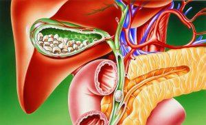 Камень в желчном пузыре: эффективное лечение без операции