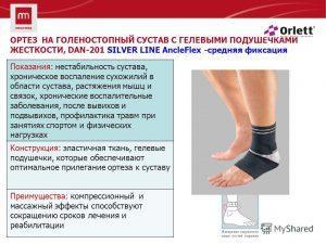 лечение растяжений суставов